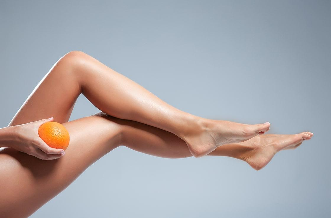 The fight against cellulite: keeping dimpling at bay