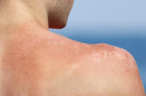 Comprendre et prévenir les dangers du soleil pour la peau ...